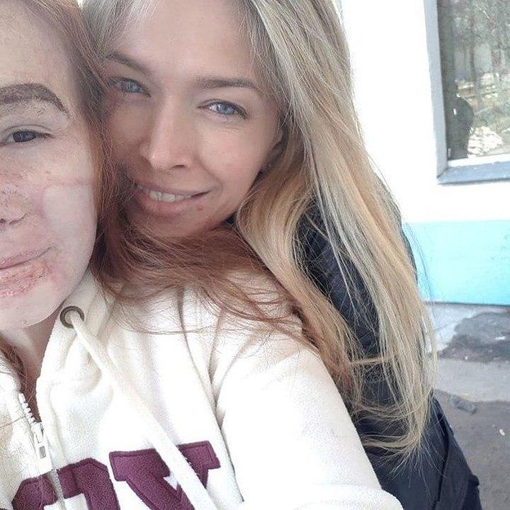 Вера Брежнева сделала сюрприз для 14-летней жительницы Стерлитамака, перенесшей 21 операцию